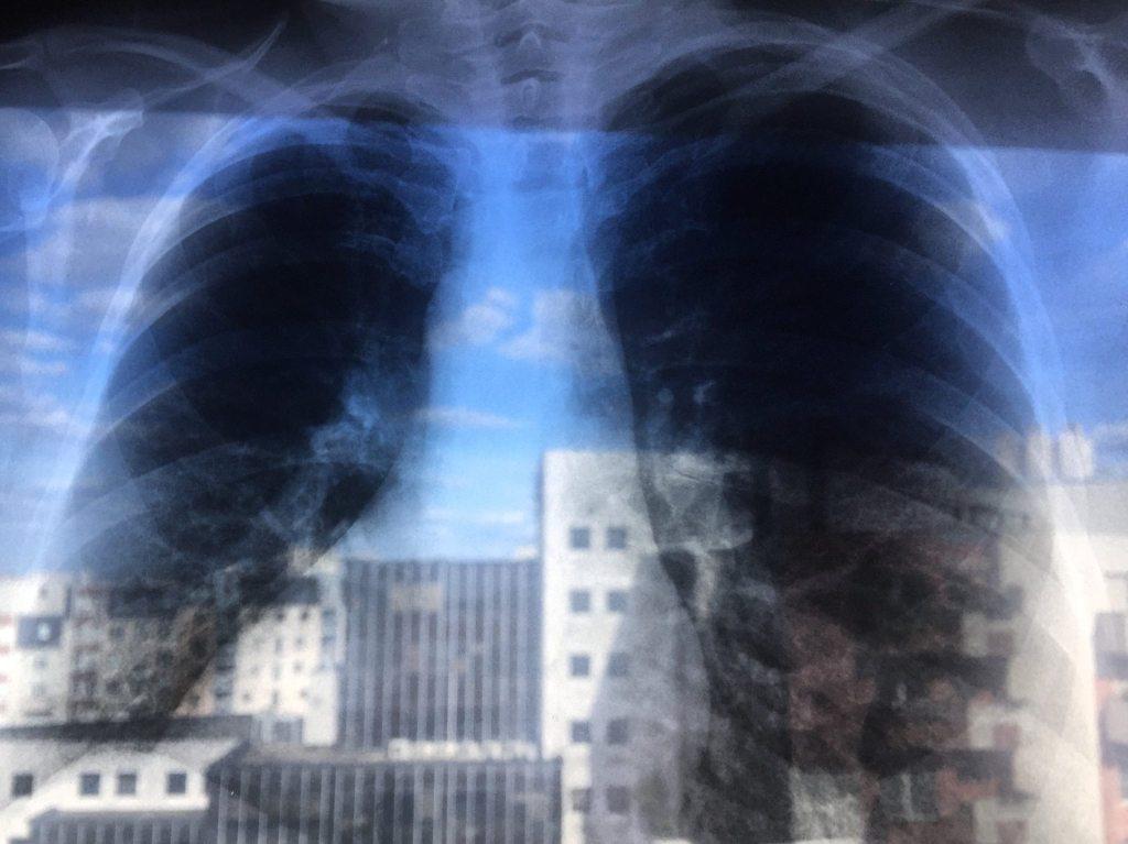 poumons ville
